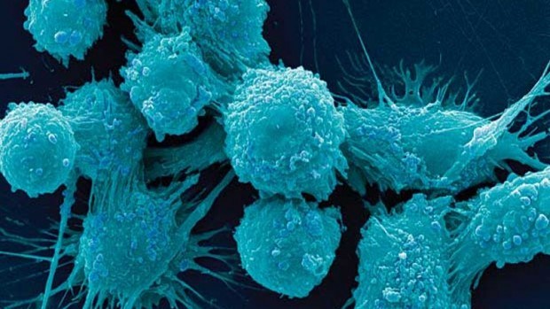 Препарат для лечения рака груди оказался эффективным против рака простаты