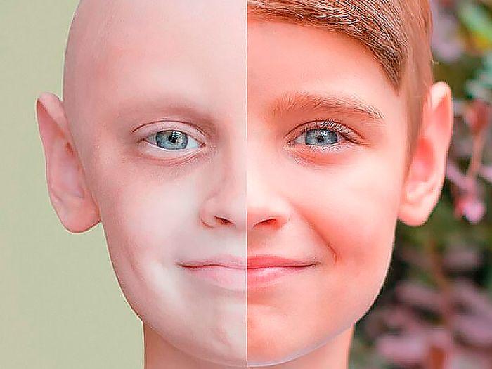 5 признаков, указывающих на рак у молодых людей