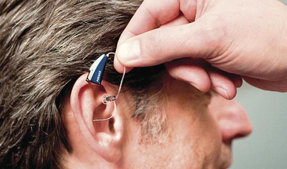 Слуховой аппарат — путь к полноценной жизни без проблем