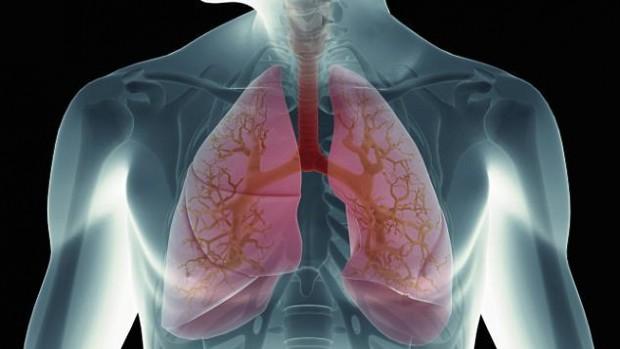 Пациенты с раком легких чаще совершают самоубийство