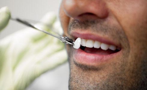 Современные методы реставрации зубов