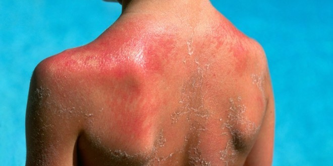 Как защитить ребенка от рака кожи
