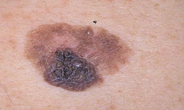 Заявлен патент на средство для лечения рака кожи