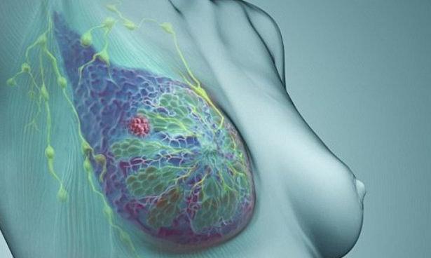 Смертность от рака груди с 1989 года снизилась на 40%
