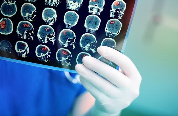 Мышьяк эффективен против опухолей мозга