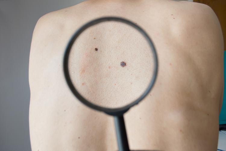 Как возникает меланома?
