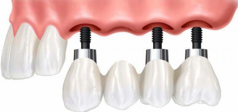 Этапы восстановления зубов при базальной технологии имплантации с моментальной загрузкой