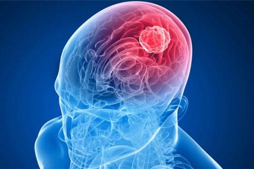 Что может вызвать рак головного мозга?