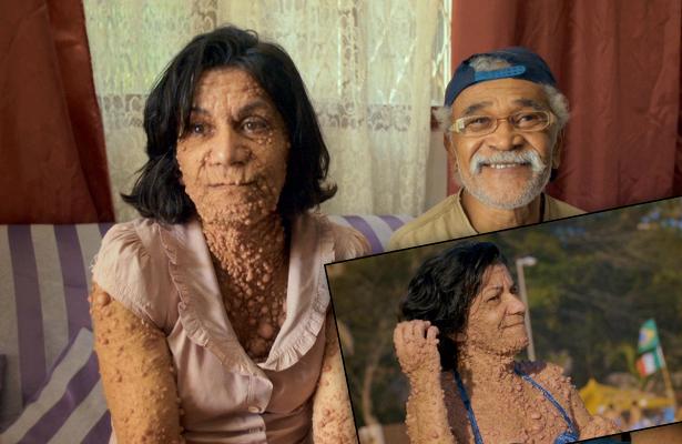 Бразильянка с нейрофиброматозом учит радоваться жизни