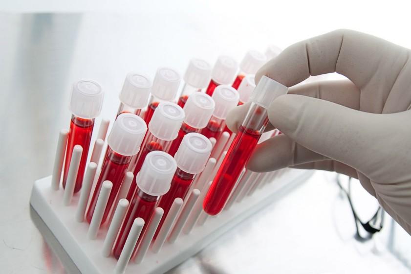 Онкологи нашли лечение рака крови