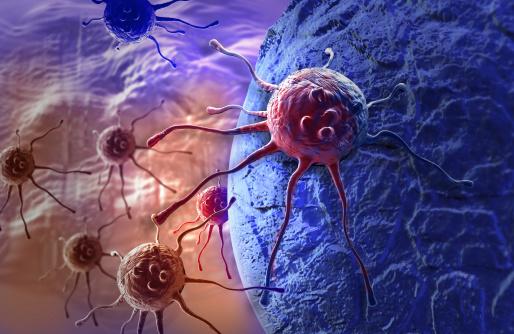 В 4% случаев тип рака определяют неправильно