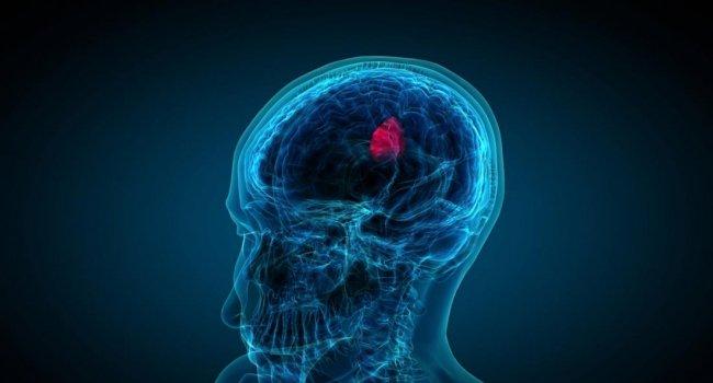 Блокировка протеинов TRF1 может остановить агрессивный рак мозга