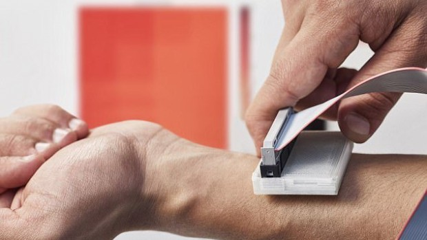 Новое устройство может выявить рак кожи с помощью датчиков температуры