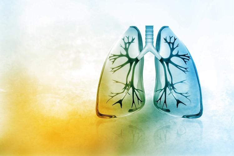 Рак легких: признаки, симптомы, стадии и лечение