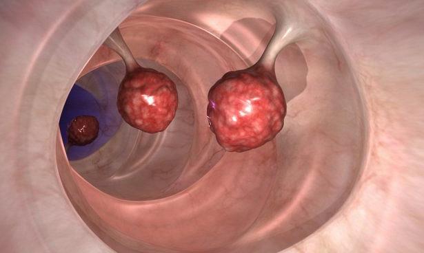 Как иммунная система способствует развитию рака