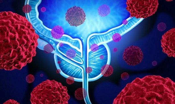 Стало известно, как остановить метастазы рака