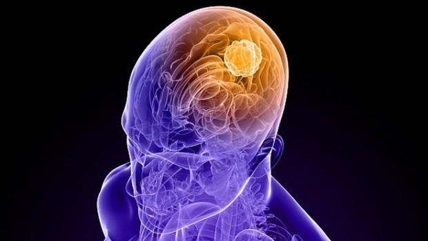 Генная терапия оказалась эффективной против рака мозга