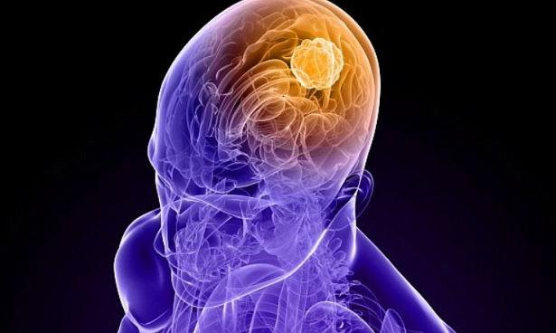 Генная терапия лечит смертельный рак мозга
