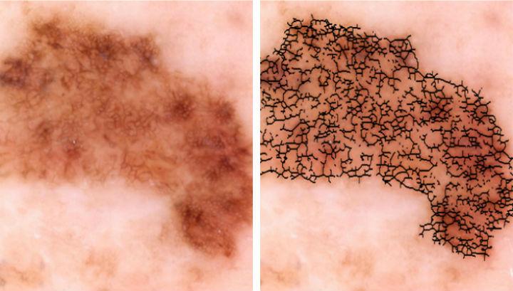 Специалисты назвали овощ, который поможет защититься от рака кожи