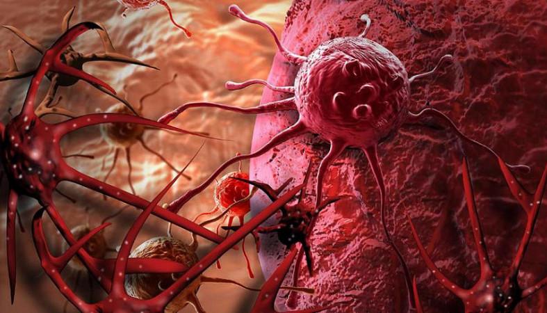 Назван новый эффективный способ снизить риск заболевания раком