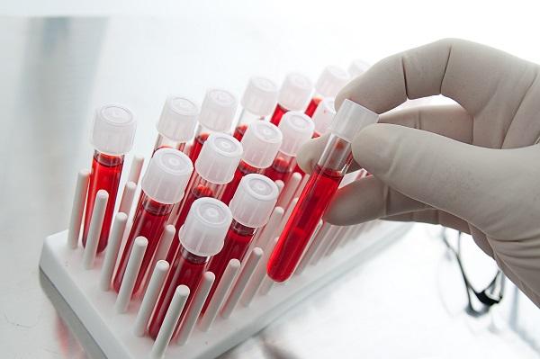 Рано диагностировать рак поможет простой анализ крови
