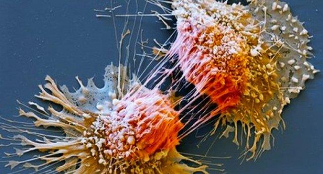Ученые нашли белок, ответственный за метастазирование рака