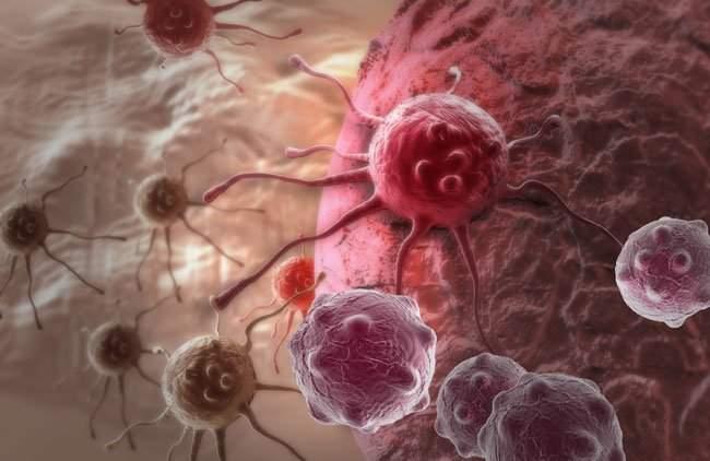 Названы признаки начала рака яичников
