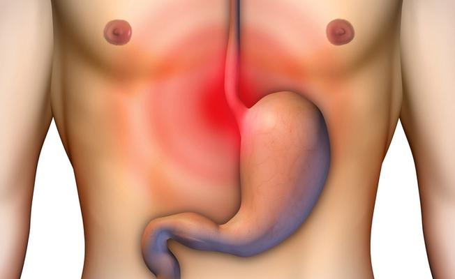 9 средств от язвы желудка и изжоги
