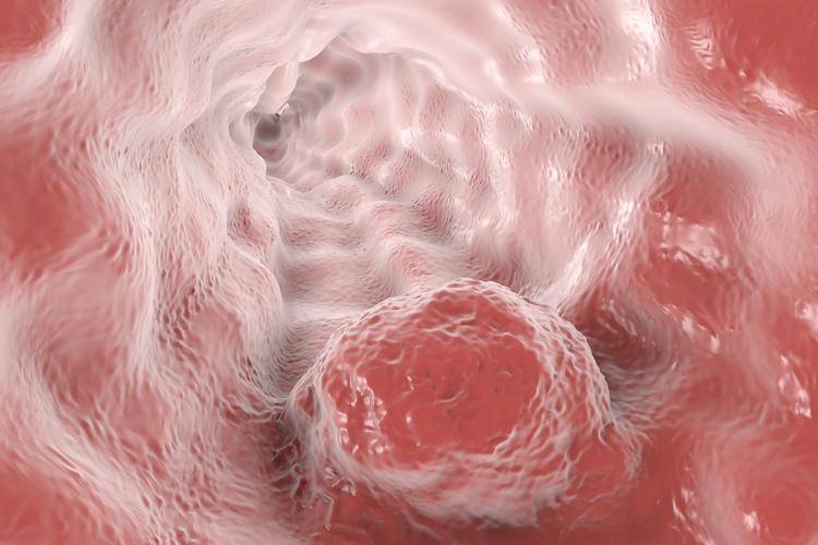 Как связаны пародонтоз и рак пищевода?