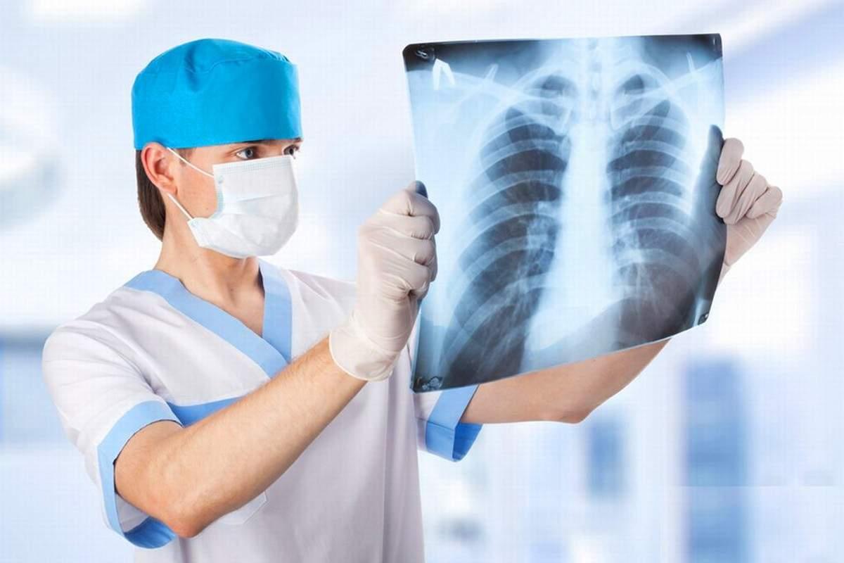 Медики назвали основные симптомы различных видов рака костей