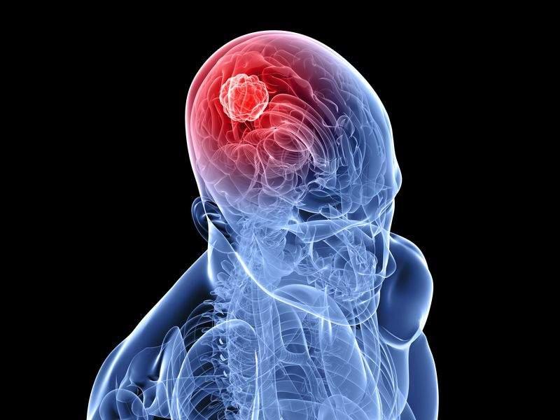 Развенчаны наиболее популярные мифы о раке мозга