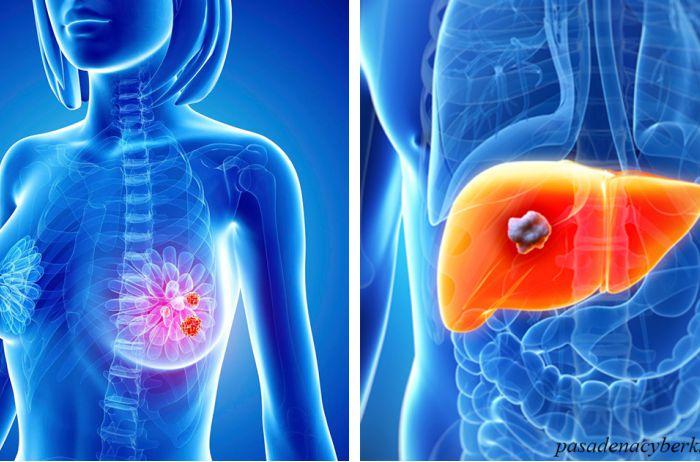 Вот те симптомы рака, которые появляются за 2-5 лет до самой болезни