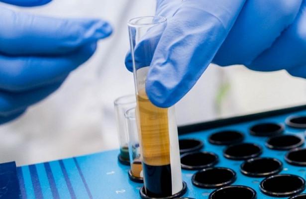 Ученые доказали пользу клетчатки в борьбе с раком