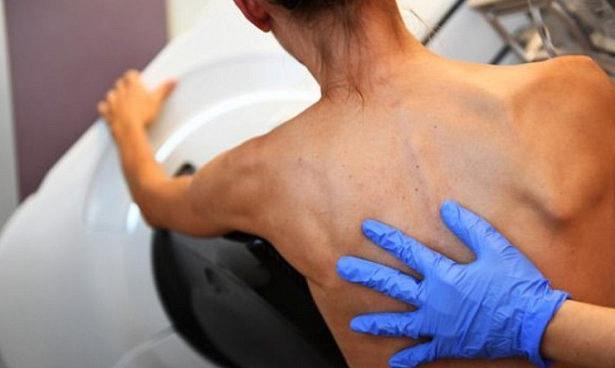 Тест избавит пациенток с раком груди от химиотерапии