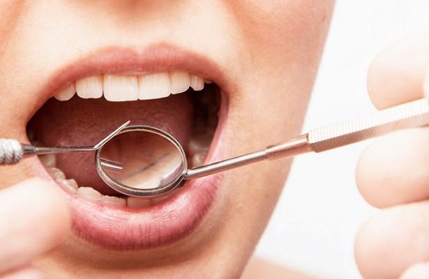 Чистка зубов снижает риск развития рака