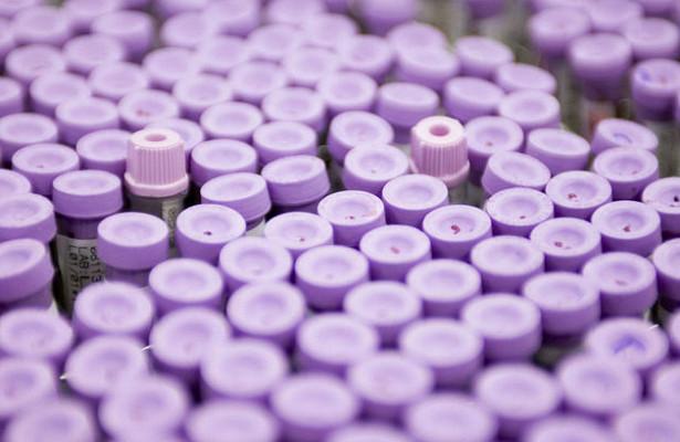 8 в 1: простой анализ крови выявит сразу несколько видов рака