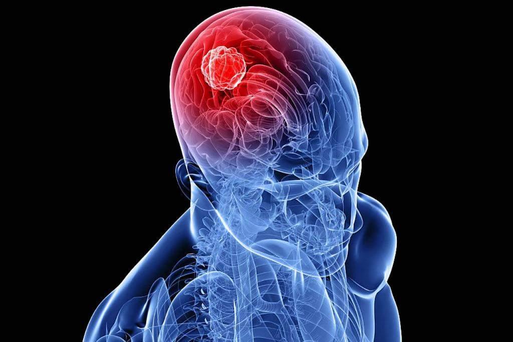По этим признакам можно распознать рак мозга на начальной стадии