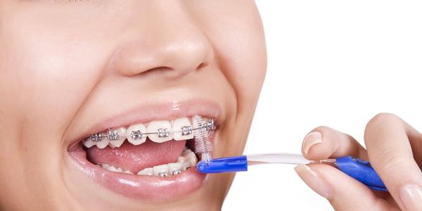 Купить брекеты для зубов