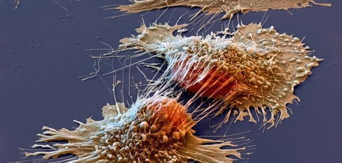 Терапия от рака с помощью Т-клеток прошла успешно