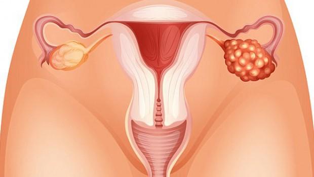 Женщины могут наследовать потенциально смертельную мутацию, связанную с раком яичников, от своих отцов