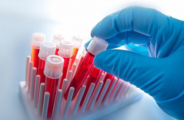 Учёные научились определять рак по капле крови