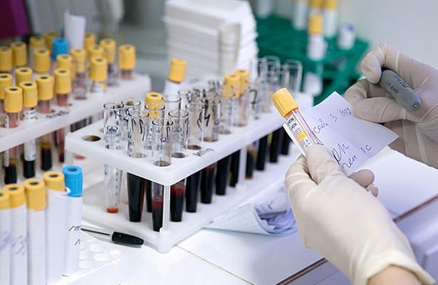 В Москве хотят повысить явку на выборы за счет анализов на онкологию?