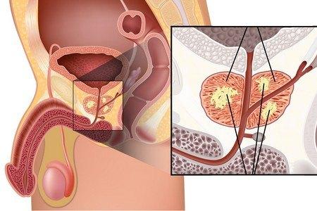 Диагностика рака предстательной железы — Способы выявление рака простаты
