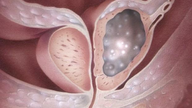 Ген, ответственный за рак груди и рак яичников, также может вызывать рак простаты