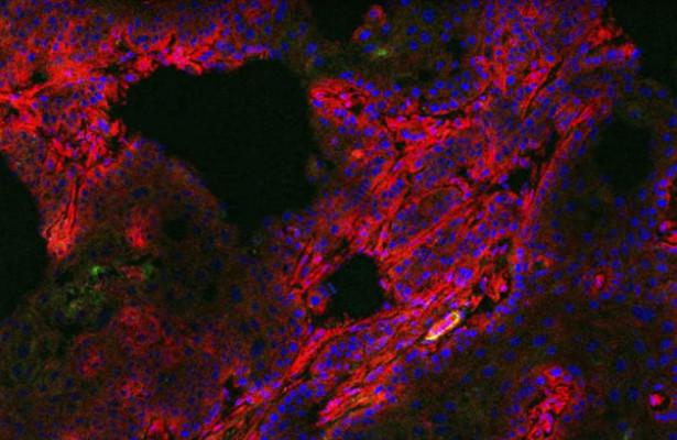 Новое слово в диагностике рака груди: таблетка заставит опухоль светиться