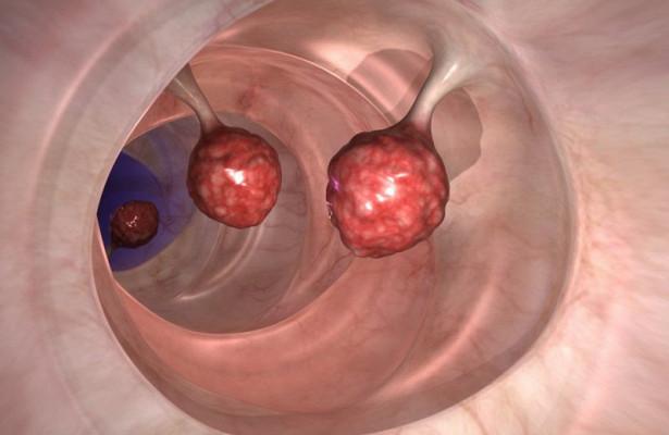 Раскрыта загадка рецидивирующего рака