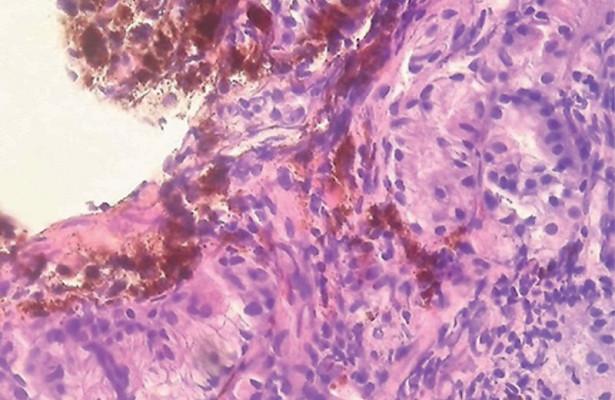 Разработан новый автоматизированный метод диагностики рака