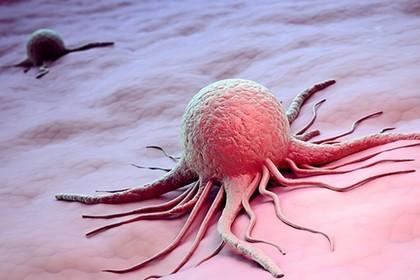Найден способ избежать особо опасного рака