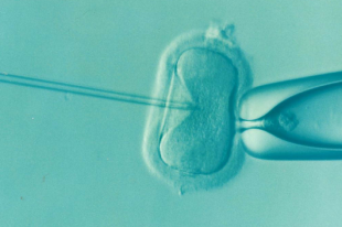 «Рак матки молодеет». Гинеколог о причинах бесплодия женщин
