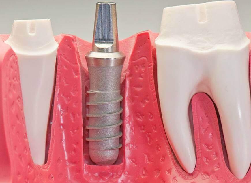Протезирование зубов. Косметическая стоматология – отличная корректирующая процедура